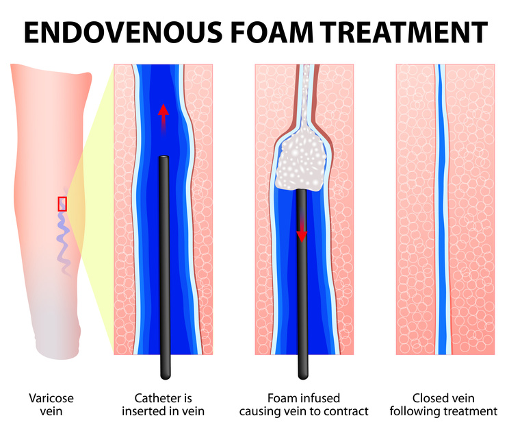 Varicose Veins. Endovenous foam Treatment. When injected inside a vein, the micro foam displaces the blood creating better contact with the vein wall. Sclerosant seals off the varicose veins.